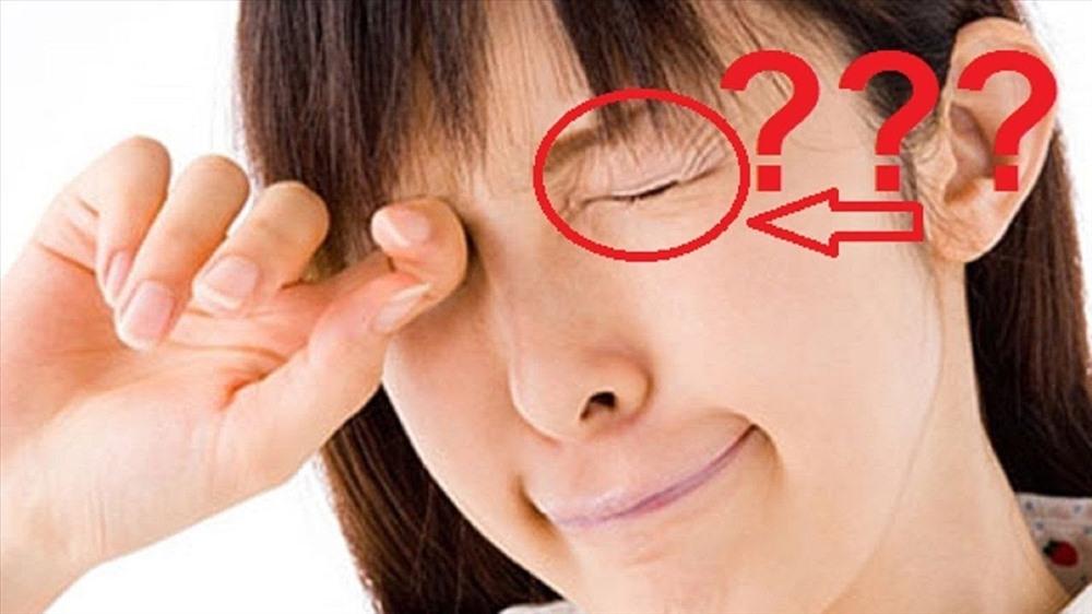 giật mắt trái ở nữ