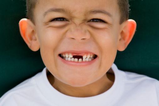 Mơ thấy răng rụng
